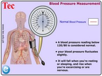 High Blood Pressure 1